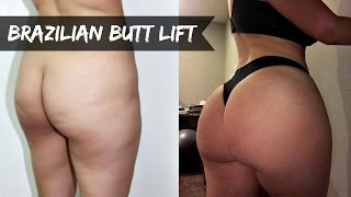 Is my butt real? Fat Transfer/BBL ✖ MY EXPERIENCE