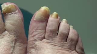 Long, Long Nail Removed & Clipped!  Dr Nail Nipper