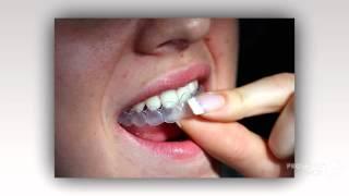 отбеливание зубов ульяновск цены   - Белые зубы каждой Леди!(, 2014-09-14T16:11:50.000Z)