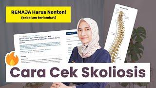 Remaja Harus Nonton: Cara Gampang Cek Kelainan Tulang Belakang (Skoliosis)   dr. Vania Utami