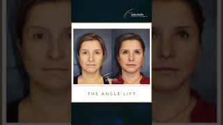 THE INVISIBLE SCARS OF THE ANGLE LIFT by Soler-Baillo Plastic Surgery