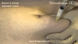 Устранение жировых отложений живота DERMAHEAL meso LL [ FloSal ]