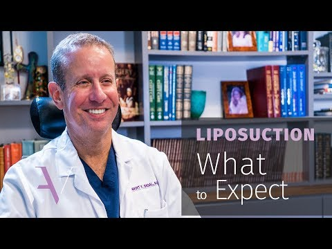 What to Expect When Getting Liposuction: The Cosmetic Surgery Journey