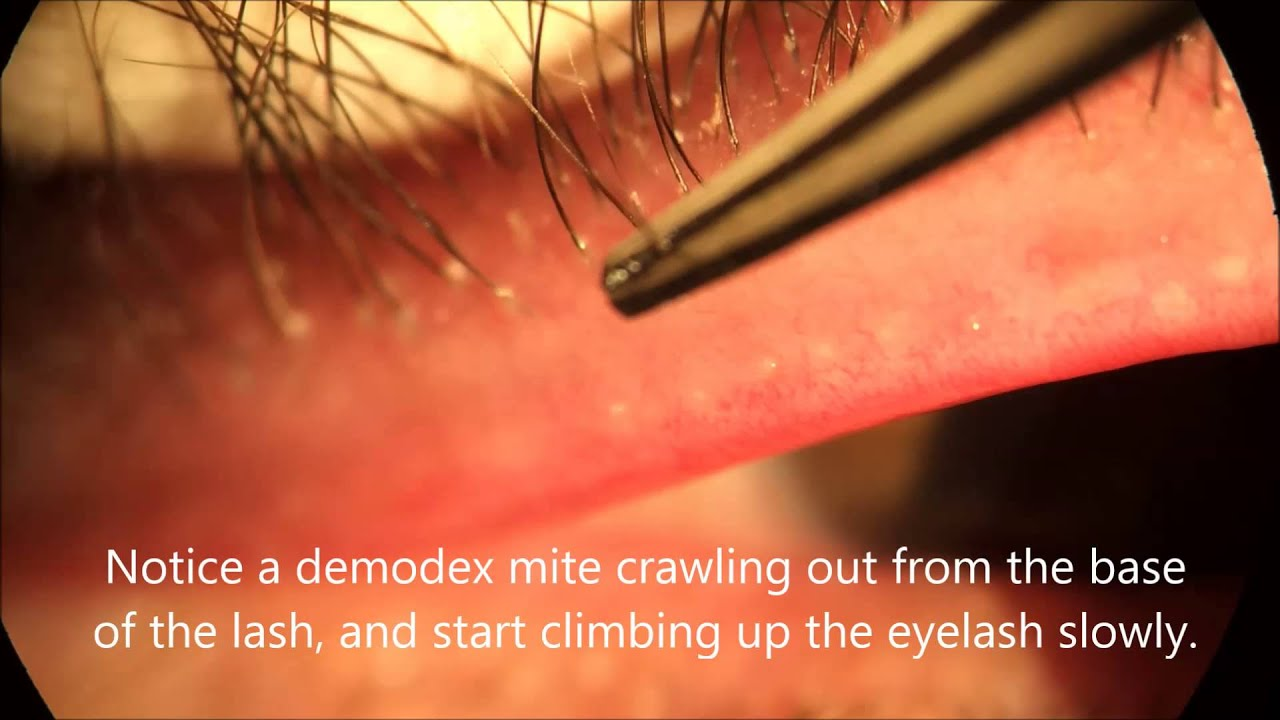 Demodex Video Youtube