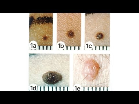 White Moles Cancerous