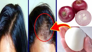 How To Grow Long and Stop Hair Fall With Onion & Egg | Magical Hair Growth Treatment 100% Works