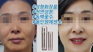 얼굴나이 거꾸로 돌리는 성형 화장품(feat.젬무브퀸에…