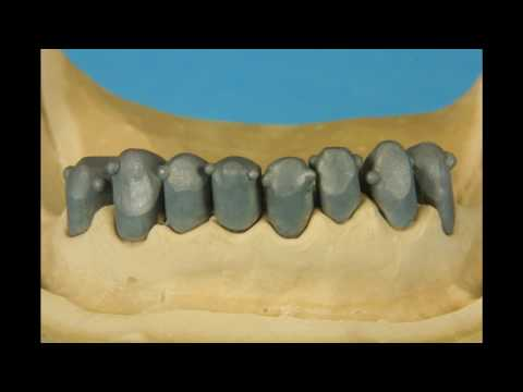 Casting of conic crowns, stage by stage, course for dental technicians, dentistry