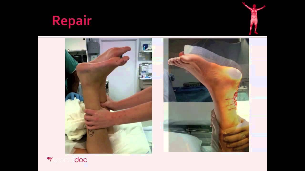 Achilles Tendon Tear: Surgery - YouTube