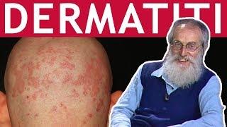 Dott. Mozzi: Dermatiti