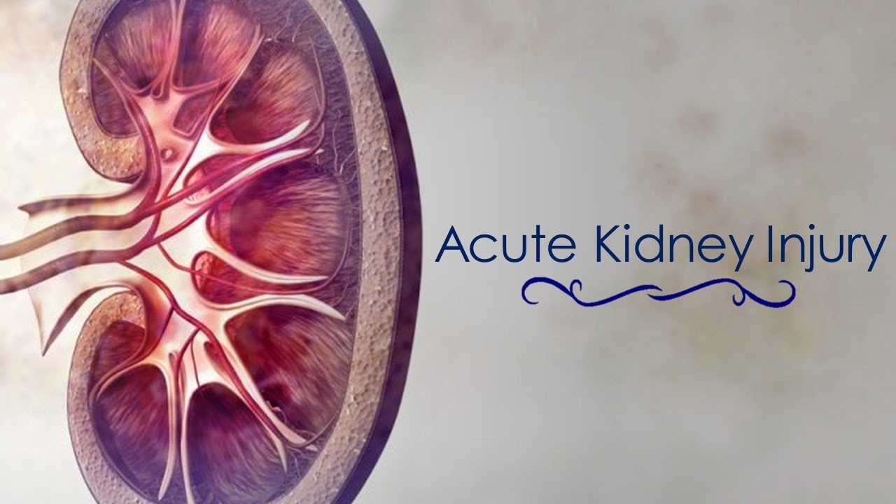 acute renal failure Join expert speakers sarah humbert, rhia, and temeka davis, rhit, for this 90- minute on-demand webinar as they discuss the recent icd-10-cm coding.
