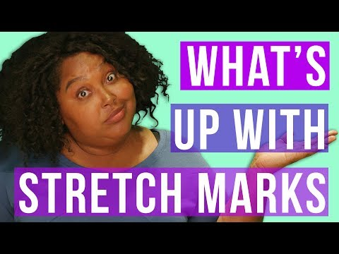 What About My Stretch Marks? – How to Prevent or Love Them // Fat and Fly AF | HISSYFIT