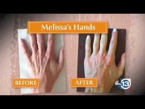 How to Repair Aging Hands and Make Your Hands Look Younger