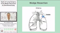hqdefault - Bilateral Wedge Resection Kidney