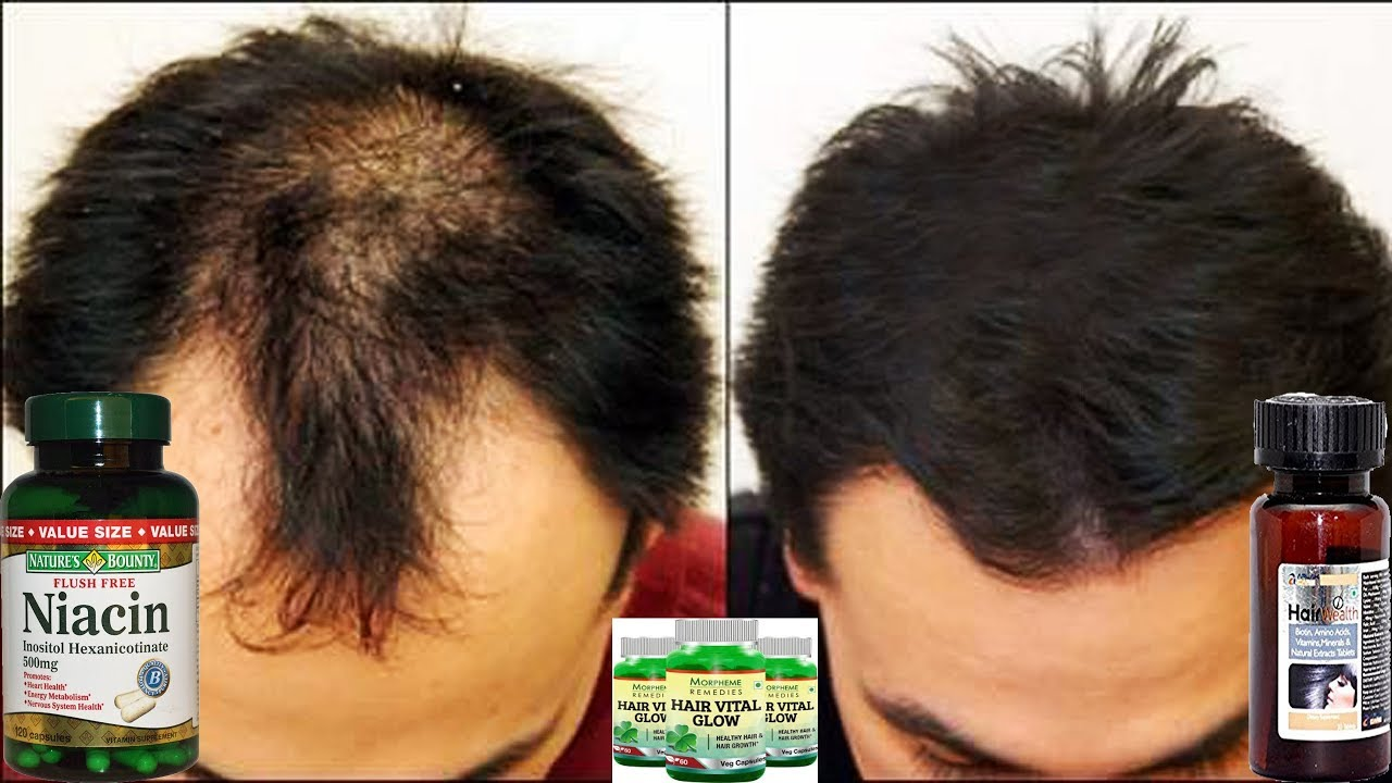 Nicotinic acid for hair growth: application and result 17