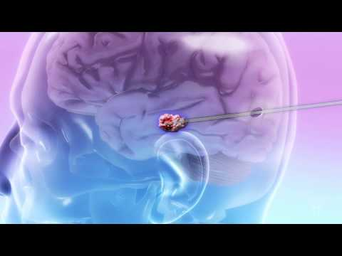 When Breast Cancer Travels to the Brain: Laser Therapy - Mayo Clinic
