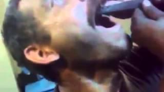 Суровая русская стоматология(Подписывайся на канал, ставь лайки. Видеоприколы, хиты, свежие хиты, свежак, лучшее, приколы, ghbrjks, ghbrjk,..., 2014-11-16T14:54:10.000Z)