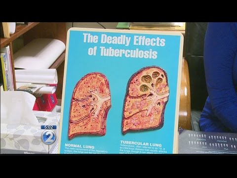 About 120 University of Hawaii at Hilo students and staff exposed to tuberculosis