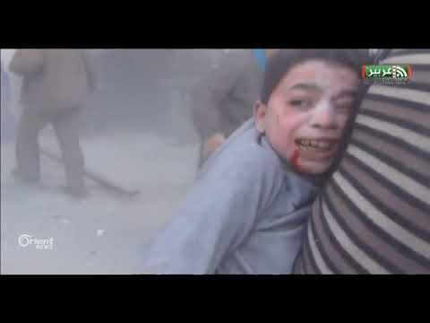 الأمم المتحدة تقول إن الوضع في سوريا يزداد سوءا والنظام يقصف بالغوطة