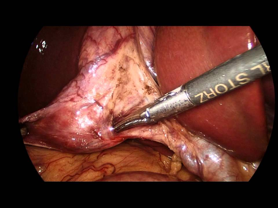 Dissection Of The Calots Triangle And Cholecystectomy During Sleeve
