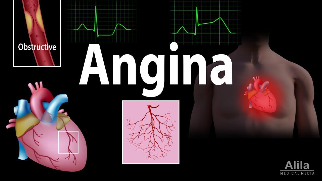 Kórtörténet hipertónia angina pectoris Magas vérnyomás – Wikipédia
