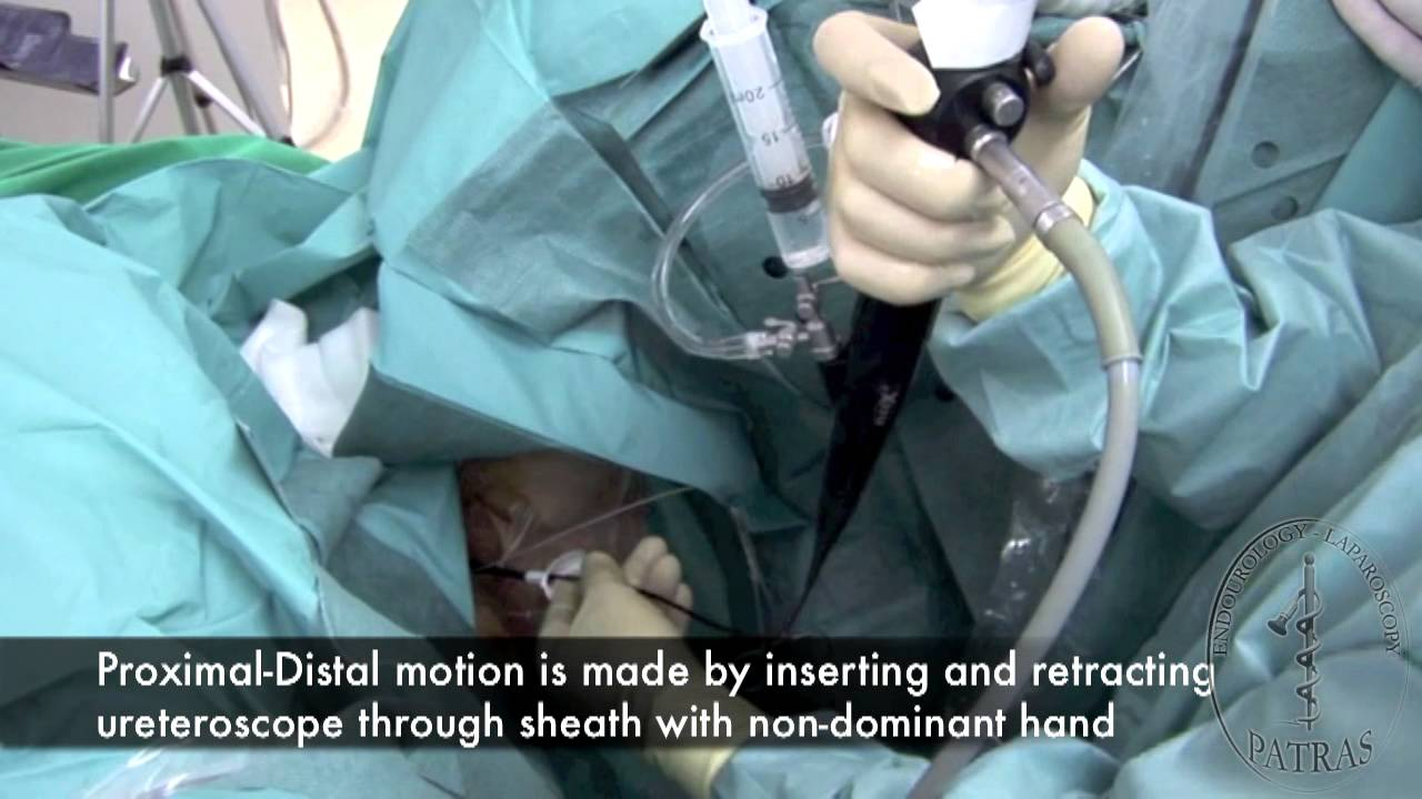 Rigid Flexible Ureteroscopy Basic Techniques For