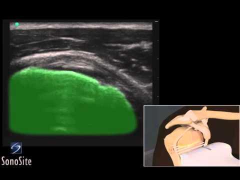 Guide 3D: Esame ecografico del tendine sottoscapolare - Sistema a ultrasuoni SonoSite