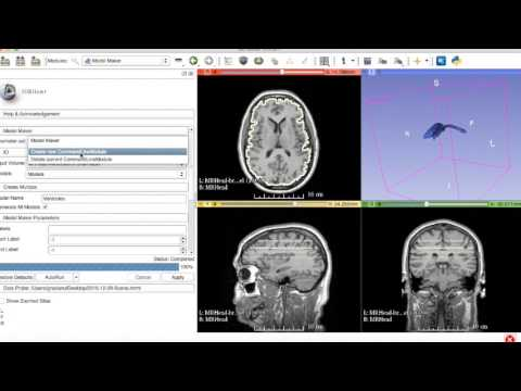 3D Slicer: Threshold Effect and Robust Statistics Segmenter