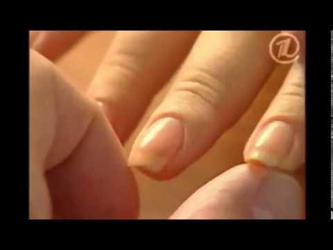 Белые пятна на ногтях, как избавиться