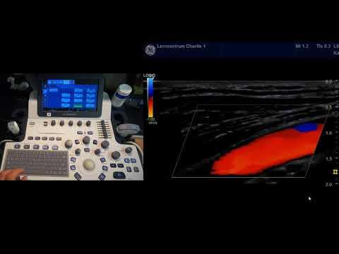 Farbkodierte Duplexsonographie: 11-Schritt-Methode