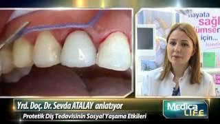 Protetik Diş Tedavisi Kimlere ve Nasıl Uygulanır?
