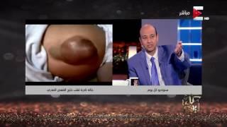 بالفيديو.. مجدي يعقوب يقبل حالة طفل قلبه خارج القفص الصدري