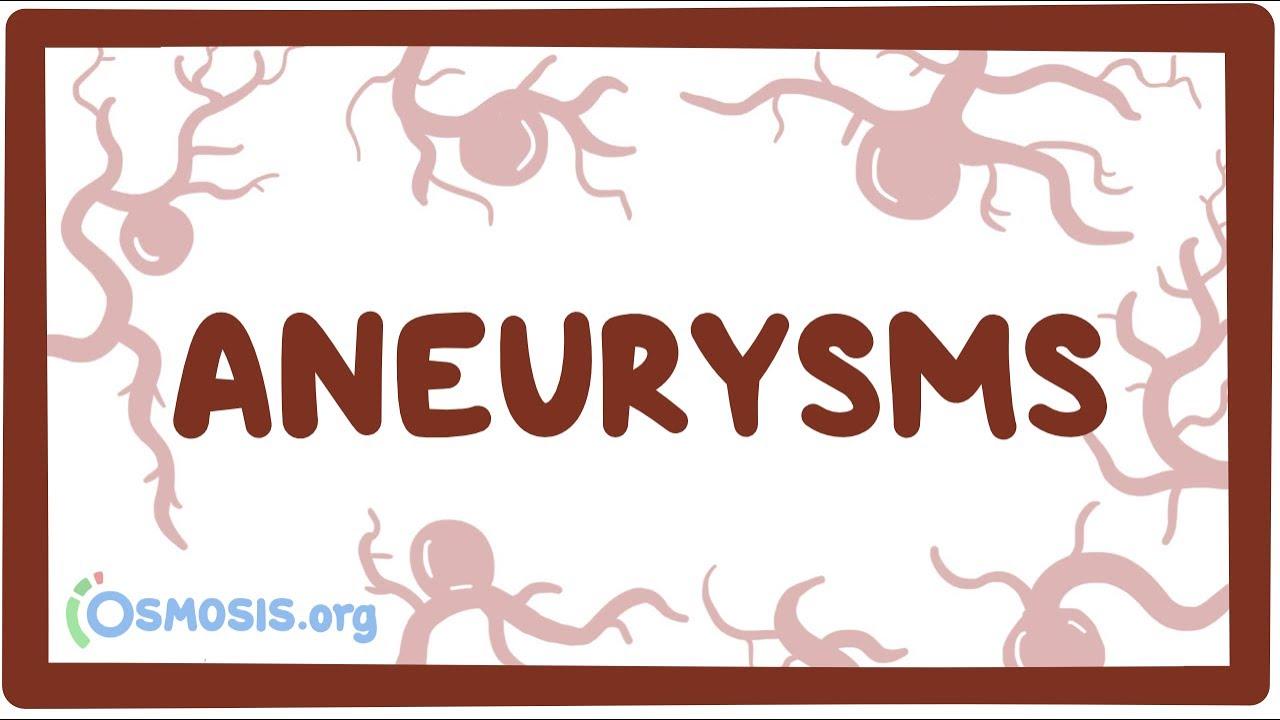 Aneurysms – causes, symptoms, diagnosis, treatment, pathology