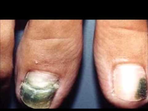 Onicomicoza: cauze, manifestari, tratament - Dr. Mihai Lupu - Dermatolog