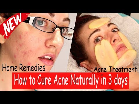 Acne | Acne Causes | Home Remedies for Fixing Acne Fast | Acne treatment at home