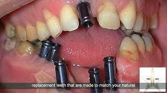 Dental Implants Riverside 951-292-0337 | Best Affordable Dental Implants Riverside Ca 951-292-0337