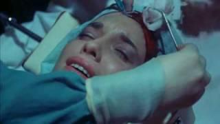 Faceless (1988) -Surgery Scene 2