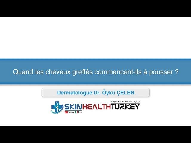 Greffe de cheveux Turquie –Quand les cheveux greffés commencent-ils à pousser? – Dr. Öykü Çelen