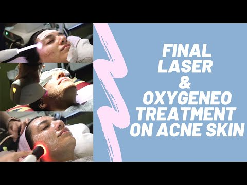 FINAL OXYGENEO and LASER Treatment on ACNE SCARRING