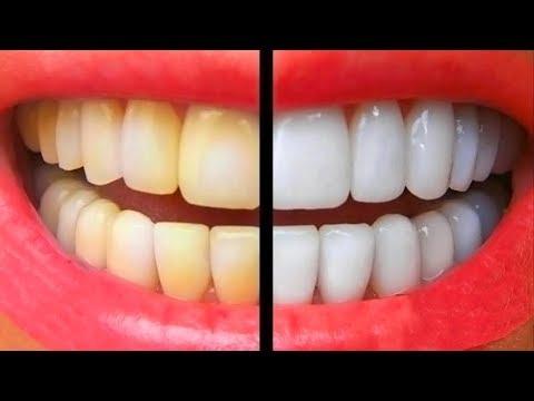 Как очистить зубы от желтизны в домашних условиях