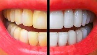 видео Натуральные средства для отбеливания зубов