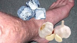 Atasi Varises Dengan Es Batu dan Bawang Putih