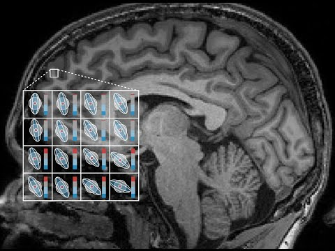 Diffusion-weighted MRI and Microstructure Imaging