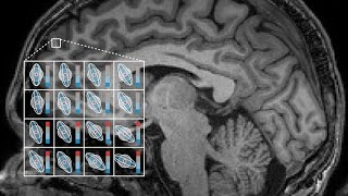 Diffusion-weighted MRI and Microstructure