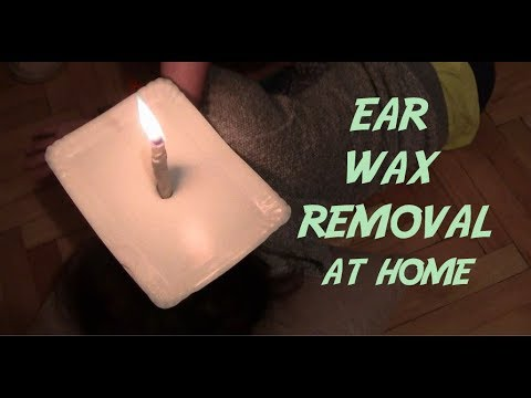 How to Removing Ear Wax With Candles - YouTube