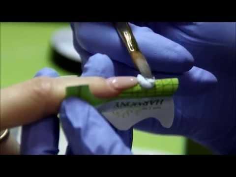 Видео Наращивание ногтей белым налётом