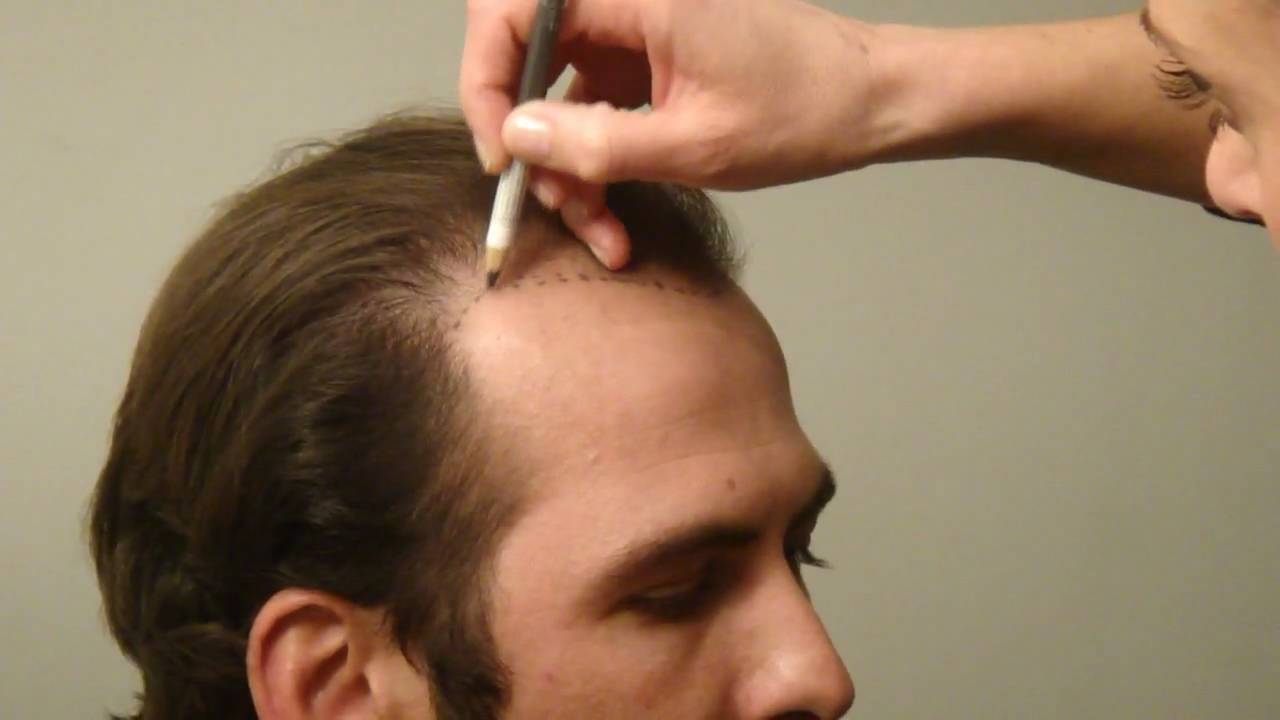 Image result for What is the FUE Hair Transplant Method?