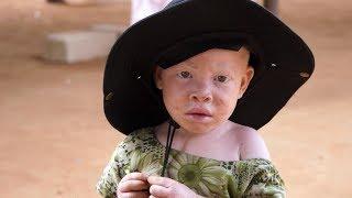 L'Afrique albinos