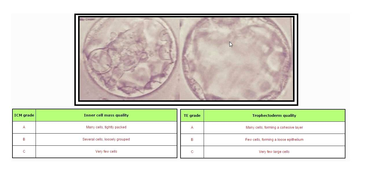 Ivf Embryo Grading Ab And Bb Youtube