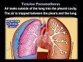 Tension Pneumothorax - Everything You Need To Know - Dr. Nabil Ebraheim